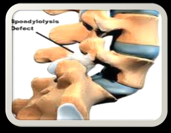 spondylothesis surgery
