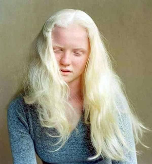 Albinizm 5