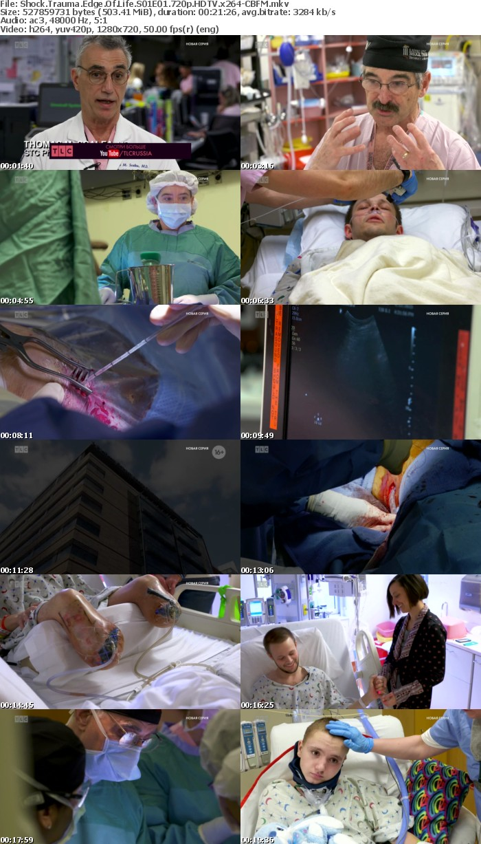 Shock Trauma Edge Of Life S01E01 720p HDTV x264-CBFM