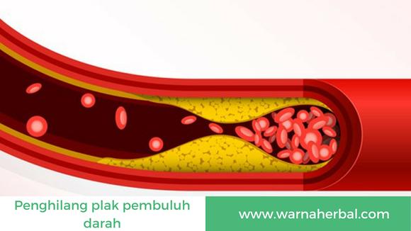 Obat Herbal Penghilang Plak Pada Pembuluh Darah